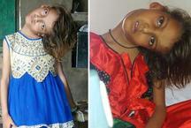 9 साल की बच्ची की हालत देख रोए लोग, एक तरफ को मुड़ी रहती है गर्दन