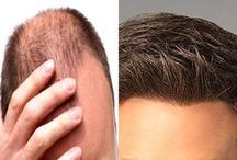 सामुद्रिक शास्त्र: सिर के बालों में दिखे ये बदलाव, समझिए किस्मत बदलने वाली है