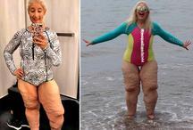 सोशल मीडिया पर महिला के पैरों को उड़ा मजाक, सच जान लोग रह गए हैरान