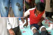 स्कूल में जींस पहनकर पहुंचा छात्र, तो टीचर ने कैंची से काट डालीं जांघें