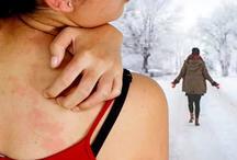 सर्दियों में एलर्जी को करना है जड़ से खत्म, तो करें इन आसान टिप्स का इस्तेमाल