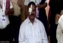 तेलंगाना: कांग्रेस विधायक का विधान परिषद अध्यक्ष पर हमला, आंख में लगी गंभीर चोंट