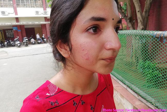 दिल्ली विश्वविद्यालयः AISA की अध्यक्ष ने ABVP सदस्यों पर थप्पड़ मारने का लगाया आरोप