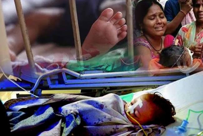 भारत में 2017 में हुए बच्चों की मौत को लेकर संयुक्त राष्ट्र ने रिपोर्ट की जारी