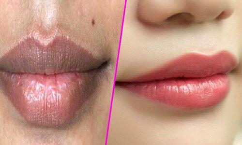 काले होठों को गुलाबी बनाने के घरेलू उपाय